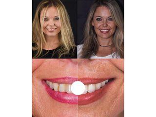 Sbiancamento denti - Clinica del Prof. Lorenzo Favero