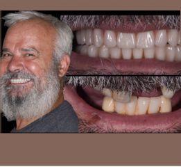 Implantologia - Clinica del Prof. Lorenzo Favero