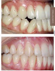 Ortodonzia - Clinica del Prof. Lorenzo Favero