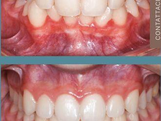 Ortodonzia-774078