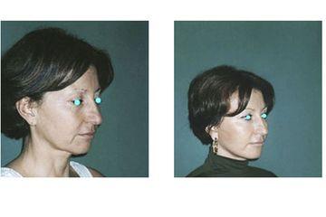 Minilifting del viso pre e post