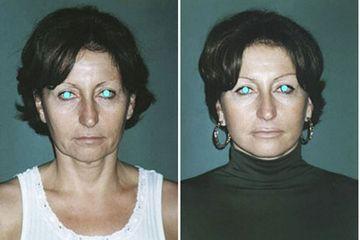 Minilifting del viso prima e dopo