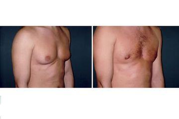 Correzione ginecomastia pre e post