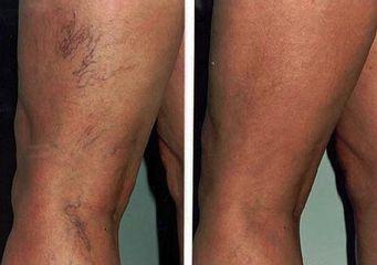 capillari gambe prima e dopo