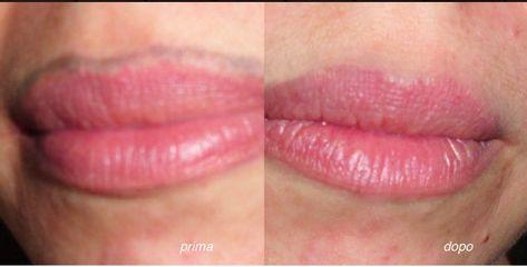 Tattoo labbra prima dopo