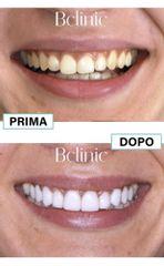Sbiancamento denti - Bclinic