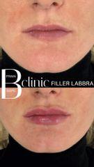 Filler labbra - Bclinic