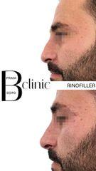 Rinofiller - Bclinic
