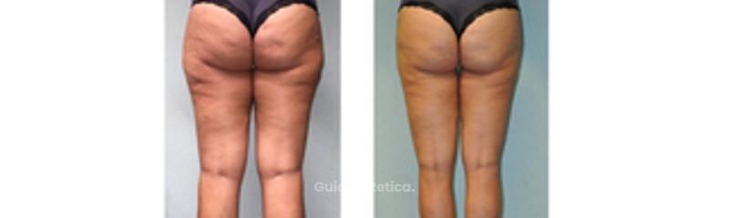 Liposcultura fianchi e gambe
