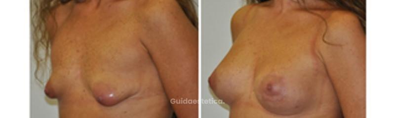 Correzione seno tuberoso tecnica roundblock