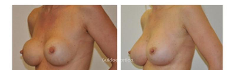 Sostituzione protesi mastoplastica additiva