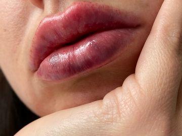 Filler labbra sopra ogni aspettativa a Milano Dr. Luca Zattoni