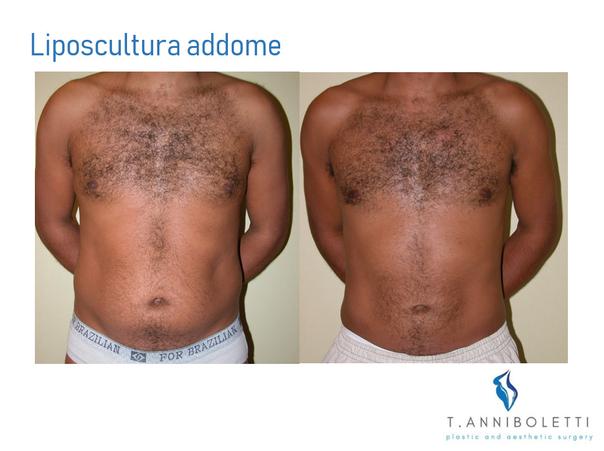 Liposcultura addominale maschile prima e dopo