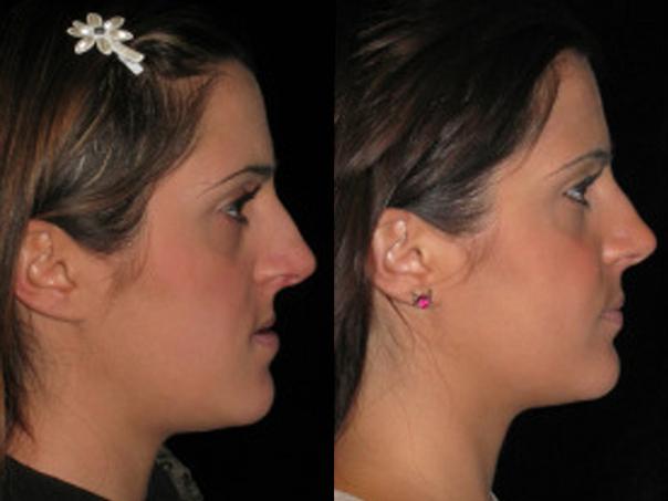 Prima e dopo intervento di chirurgia maxillo - facciale
