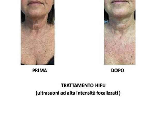 Immagine ceduta dalla Dott.ssa Elena Rametti