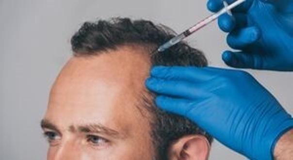 infiltrazioni contro alopecia