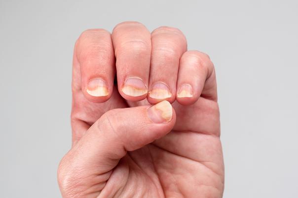 funghi unghia dito