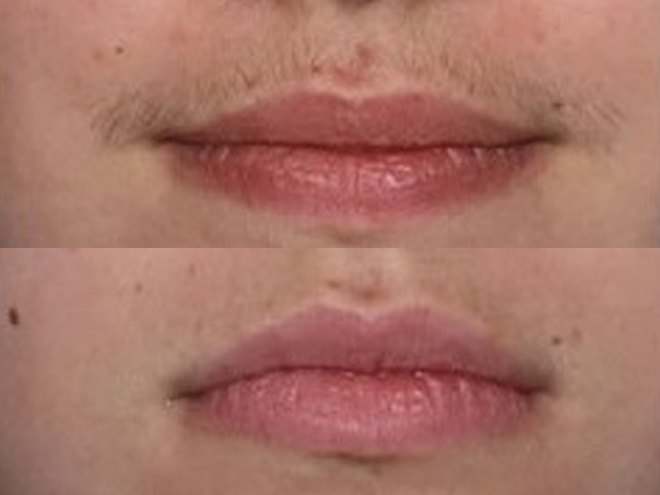 Epilazione del labbro superiore
