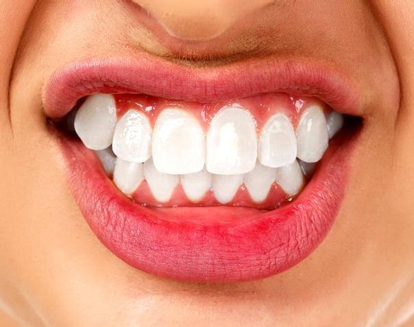 Ortodonzia costi