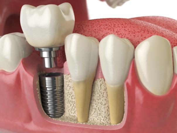 Denti artificiali