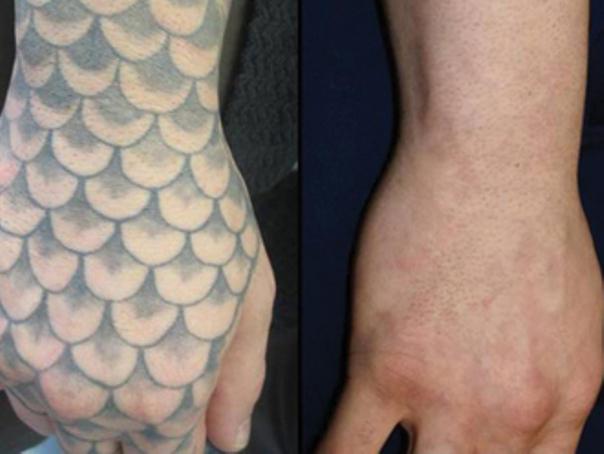 Rimozione tatuaggio dalla mano