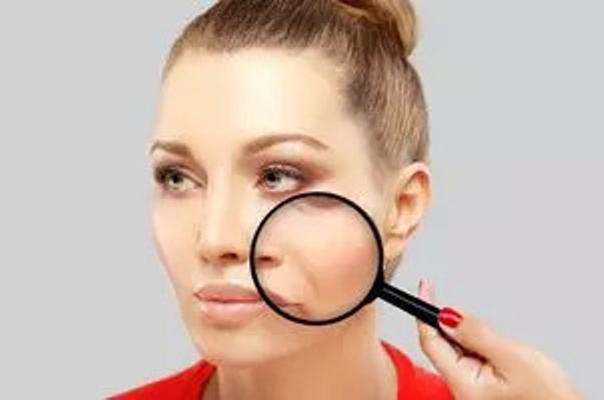 pieghe naso labiali