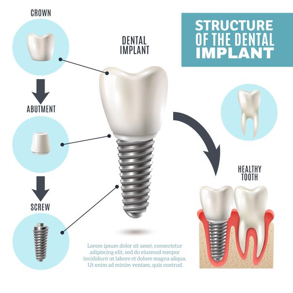 Come è fatta la protesi dentaria