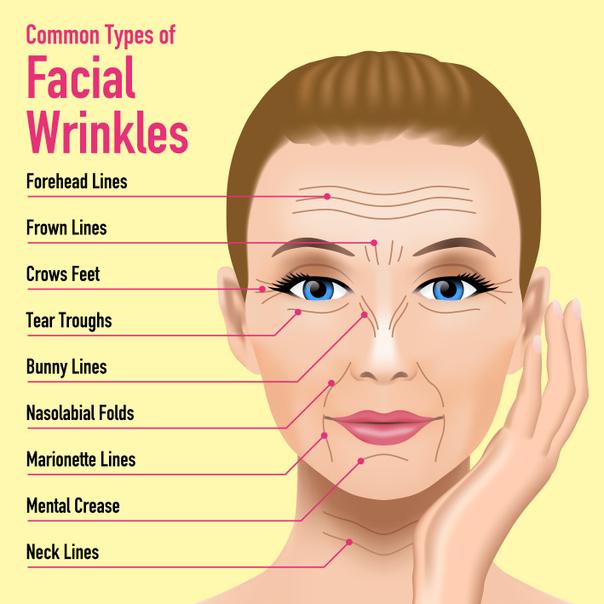 tipi di rughe del volto