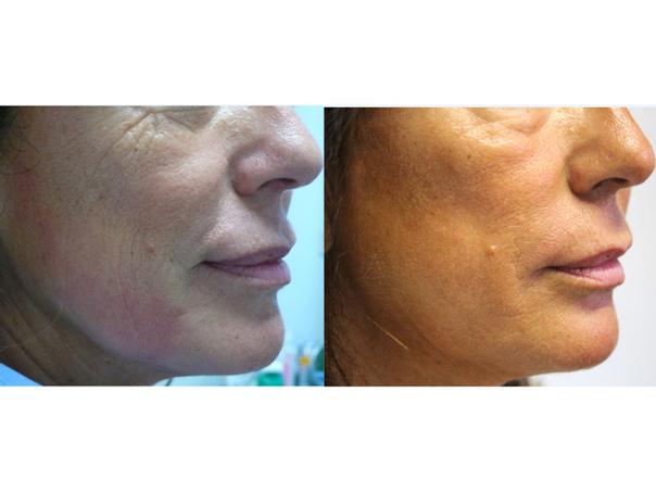 Esempio di trattamento cutaneo laser