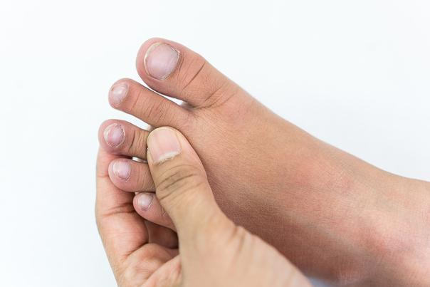 micosi unghie prima dopo
