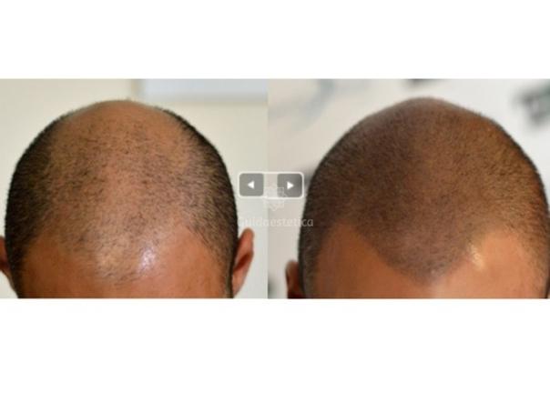 tricopigmentazione uomo