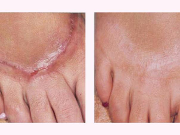 Trattamento cicatrice sul piede
