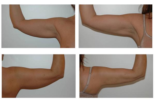 Risultati liposuzione braccia