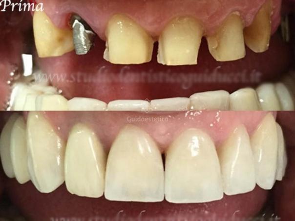 Implantologia risultati