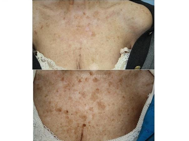 Risultati trattamento macchie della pelle