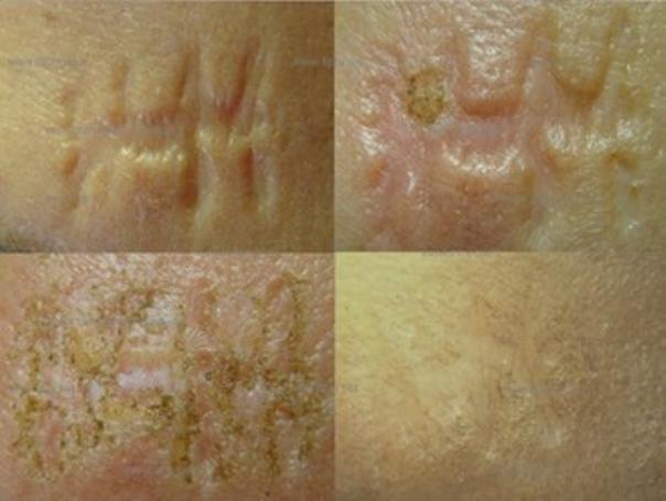 Rischi post operatori del trattamento delle cicatrici
