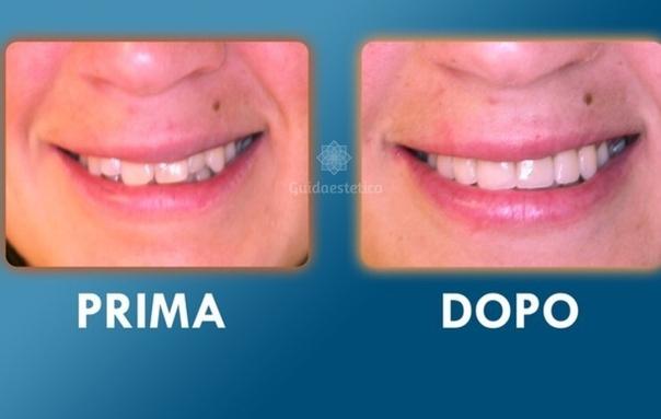 Risultati apparecchio ai denti