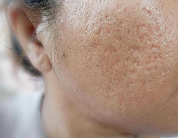 cicatrici acneiche