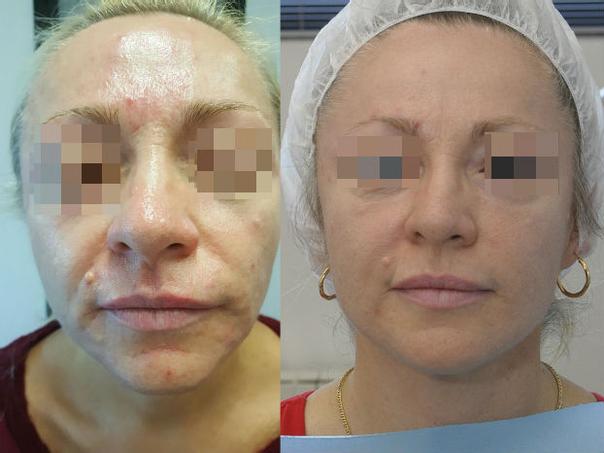 Prima e dopo trattamento con BTX A