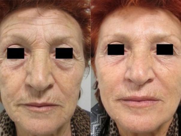 Filler acido ialuronico prima e dopo