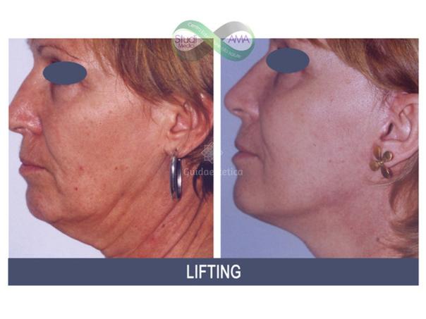 Prima e dopo lifting del volto