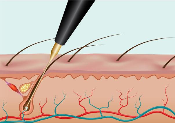 Elettrodepilazione come funziona