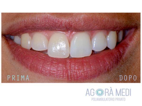 Risultati di un trattamento sbiancante dei denti