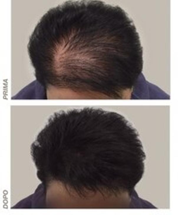 Prima e dopo trattamento alopecia
