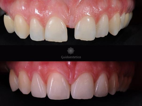 Miglioramento denti con faccette