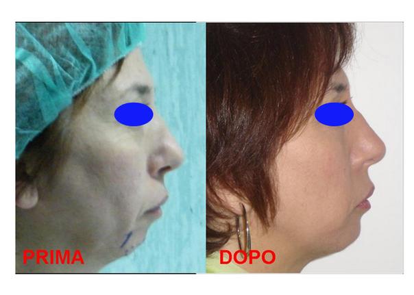 Mento di donna dopo intervento di mentoplastica