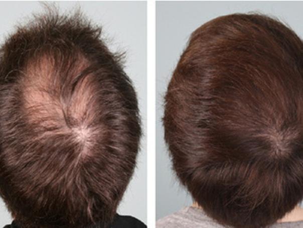 PRP per i capelli prima e dopo