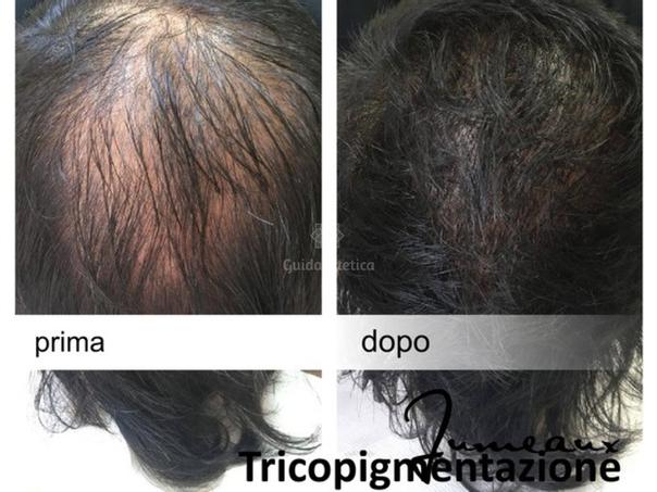 tricopigmentazione capelli lunghi