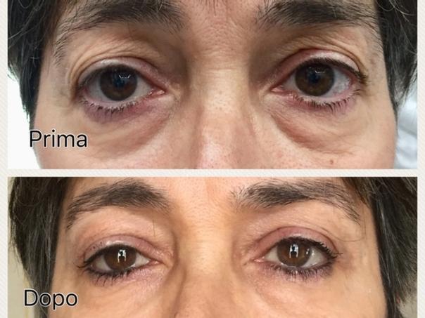 Immagine pre e post blefaroplastica senza chirurgia