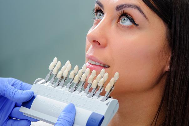 Scelta delle faccette dentali